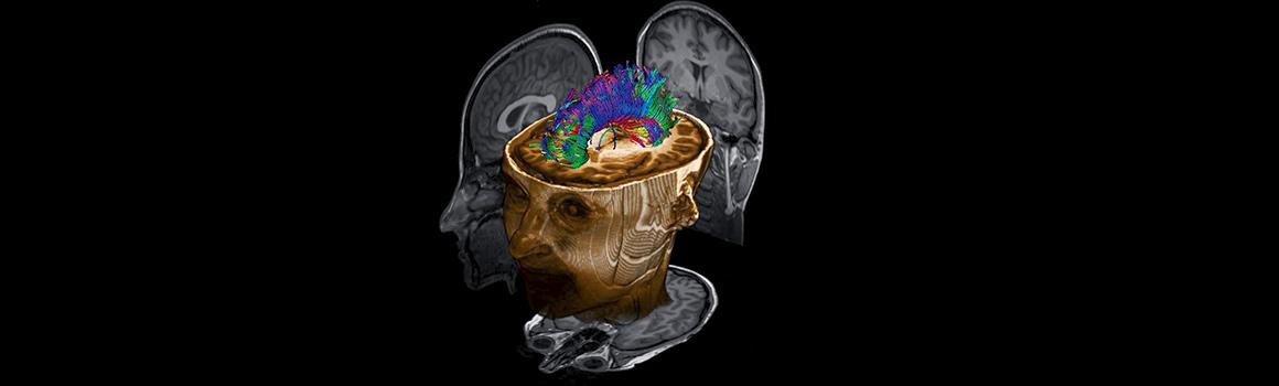 MRI-6